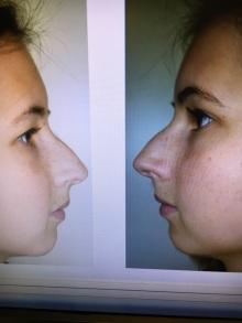 Mijn neus zoals hij toen nog was