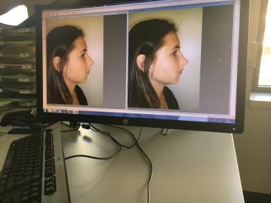 De photoshopfoto's die tijdens de consultatie werden gemaakt door de chirurg